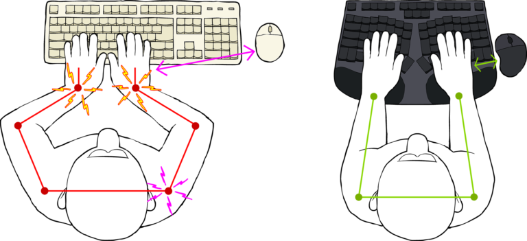 Truly Ergonomic Cleave Keyboard - Reduce Pain caused by conventional keyboards
